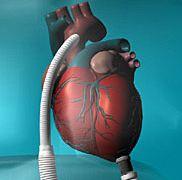 FDA Recalls Thoratec HeartMate II Pump
