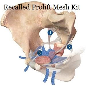 prolift_mesh_implant_anterior_111405